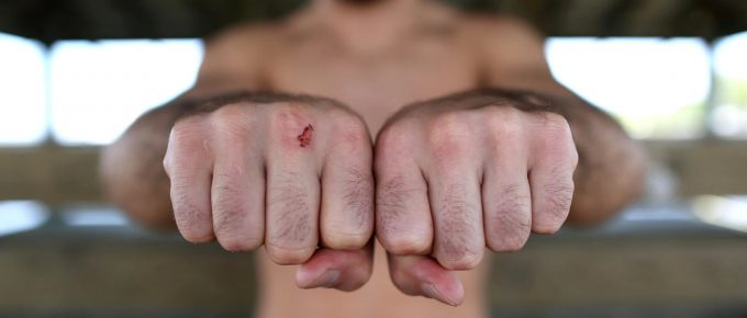 Bare-knuckle boxing is a bloodbath not fit for television audiences